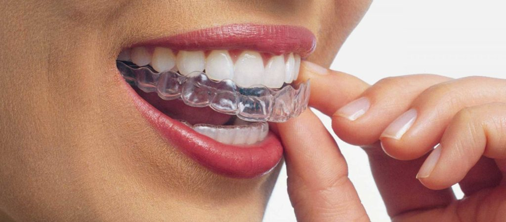Ortodonzia invisibile Siena sono allineatori trasparenti e rimovibili che vengono sostituiti ogni due settimane circa.